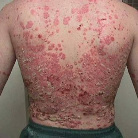 Psoriasis - History and exam | BMJ Best Practice